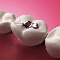 Metal_free_dentistry.jpg